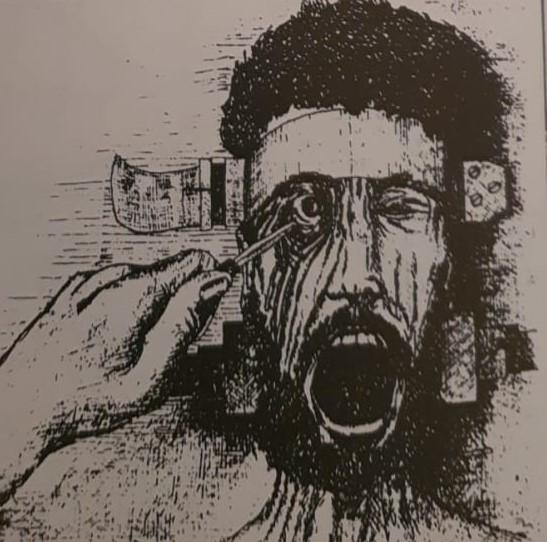 فقأ العين بالسكين رسم تصويري لعلميات التعذيب التي قام بها الاحتلال العراقي في الكويت